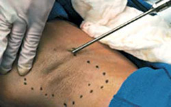 Симпатэктомия считается одним из самых эффективных способов хирургического лечения гипергидроза ладоней.