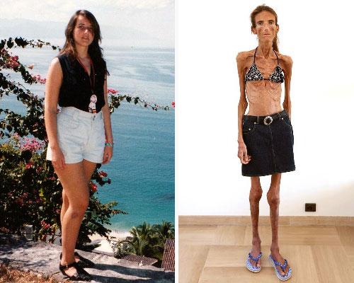 Россиянка, страдающая анорексией, призывает девушек отказаться от диет