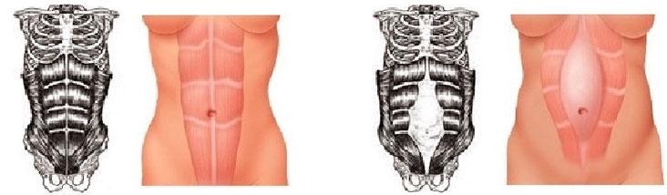 Мышц живота диастазе диета при прямых
