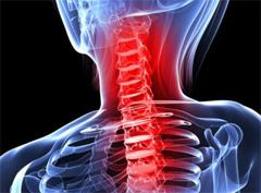 остеохондроз – не болезнь, а процесс старения позвоночника